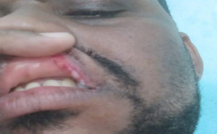 Advogado negro é agredido com tapa no rosto em abordagem da PM da Bahia